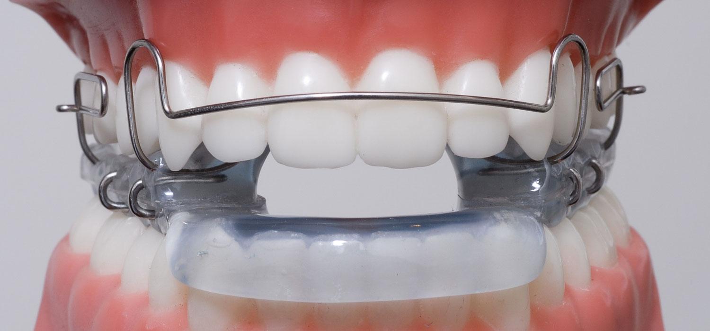 verschillende beugels blokbeugel orthodontiepraktijk leidsche rijn vleuten