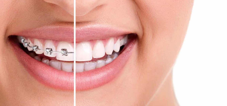 verschillende beugels slotjes beugel orthodontiepraktijk leidsche rijn vleuten