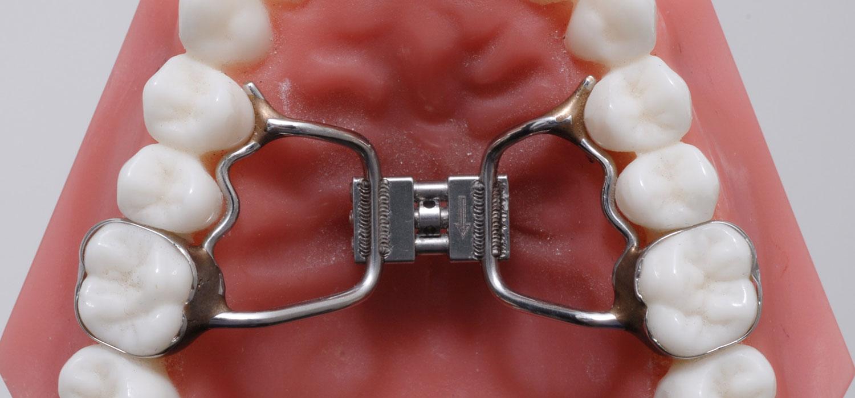 verschillende beugels vlinderbeugel hyrax orthodontiepraktijk leidsche rijn vleuten