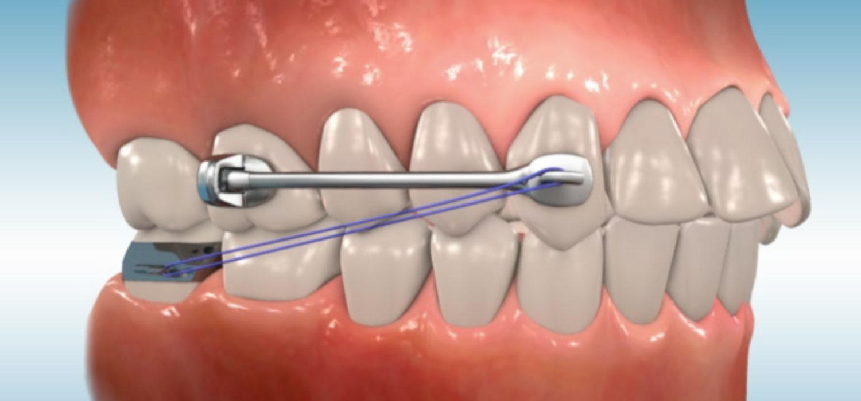 verschillende beugels distalizer orthodontiepraktijk leidsche rijn vleuten