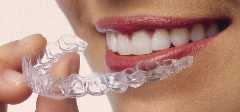 verschillende beugels invisalign beugel orthodontiepraktijk leidsche rijn vleuten