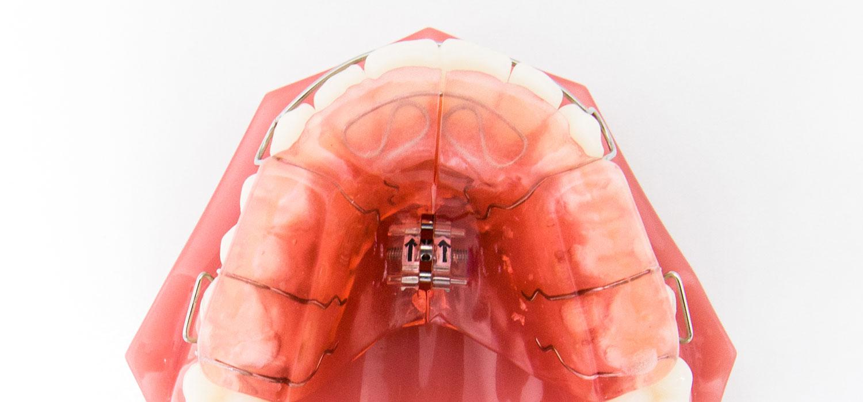 verschillende beugels opbeet plaat orthodontiepraktijk leidsche rijn vleuten