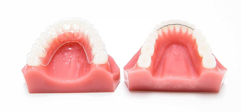 verschillende beugels retentiedraad of spalk orthodontiepraktijk leidsche rijn vleuten
